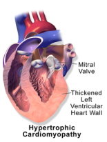 Apical hypertrophic cardiomyopathy causes a thickening of the heart wall  (Image from Wikipedia)