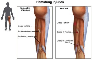 Hamstring injuries are common in football (Image from Wikipedia)