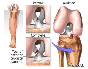 An anterior cruciate ligament injury is the over-stretching or tearing of the anterior cruciate ligament (ACL) in the knee  (Image from A.D.A.M)